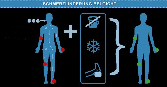 Schmerzlinderung bei Gicht: kein Alkohol, kühlen, Fuß hochlagern